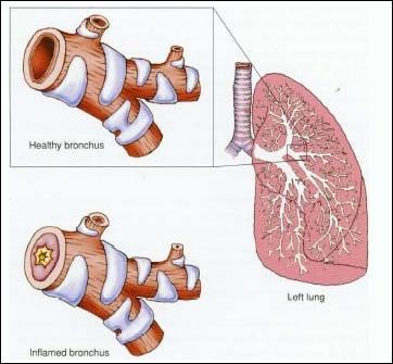 bronchiolitis image wonderbaba